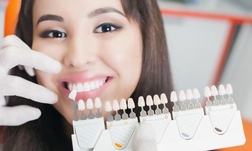 Facette dentaire Vélizy-Villacoublay
